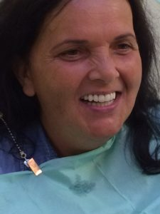 implant fixed teeth